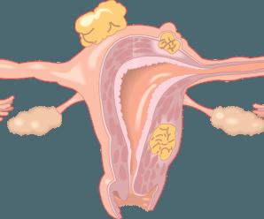 Obstrucción de Trompas y Quedar embarazada