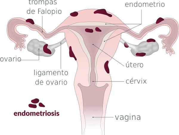 Qué es la endometriosis.